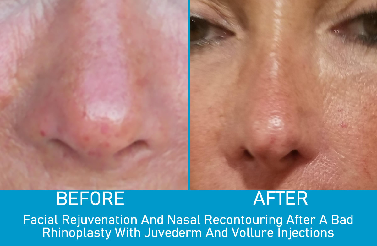 Spider Vein Removal Monmouth County, NJ Before And After Photo - Dr. Fretta's Total Vein Care